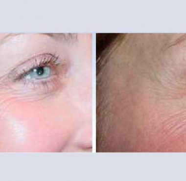 recosmo-before-after-aging-1